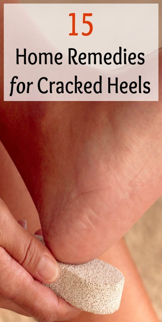 15 Home Remedies for Cracked Heels #crackedskinonheels