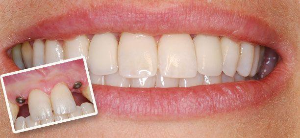 #DentalImplants #Implants #Implant #DentalImplant #BeforeandAfter #BeforevsAfter #Before #After #PrestigeDental #Henderson #Nevada #Dental #DentalHealth #HendersonNV #LasVegas #LasVegasNV #dentist
