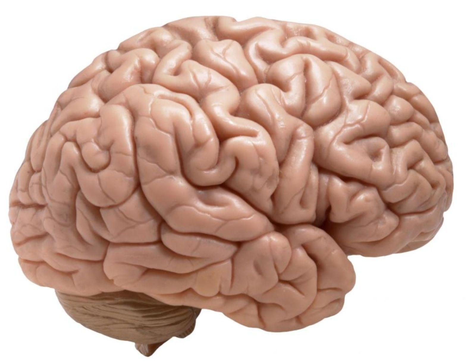 Chiquidatos sobre el cerebro   Ictus   Pinterest   El cerebro ...
