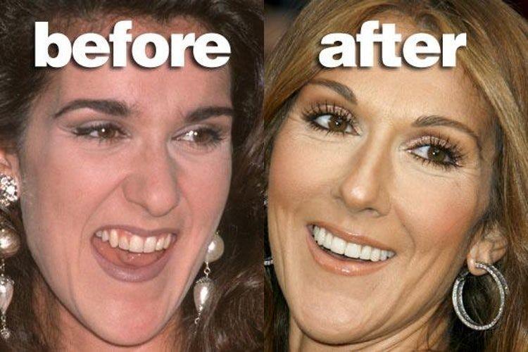 Celebrities With Fake Teeth Celebrity Teeth Celebrity Smiles Celebrity Plastic Surgery