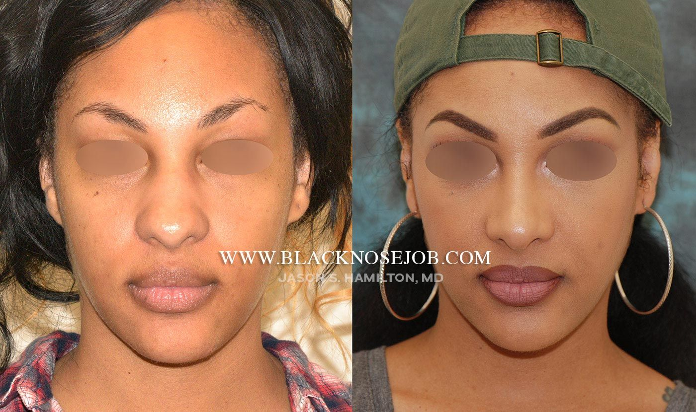 image result for african american nose job before and after | nose