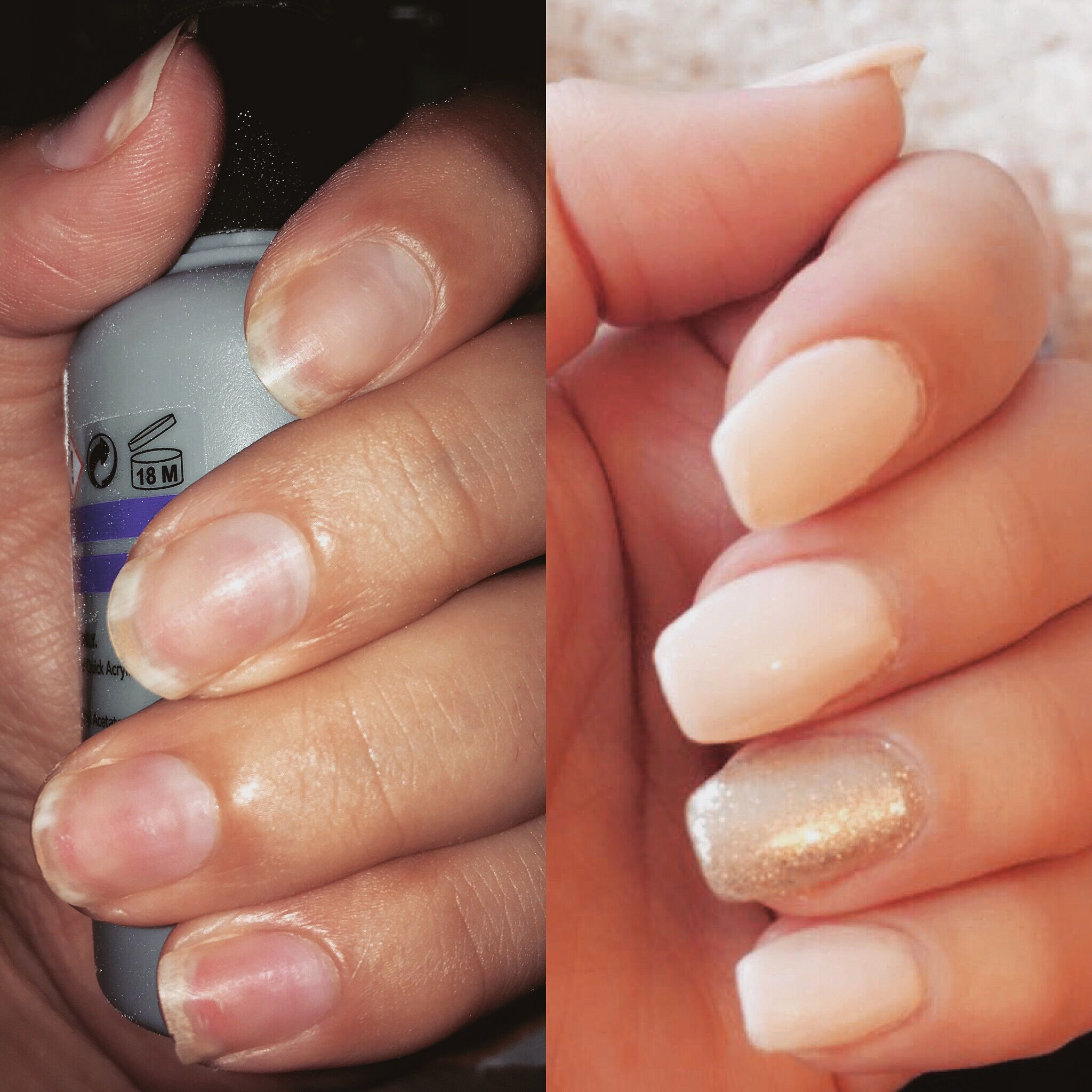 Nail transformation!! Broken brittle and damaged post pregnancy ...