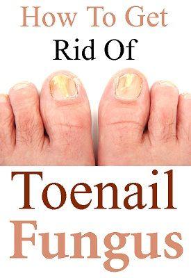 Toenail Smells Like Cheese : toenail, smells, cheese, Health, Remedies