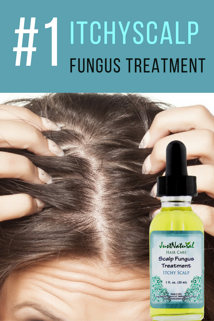 Scalp Fungus Treatment  UltraConcentrated Scalp Itch Formula This