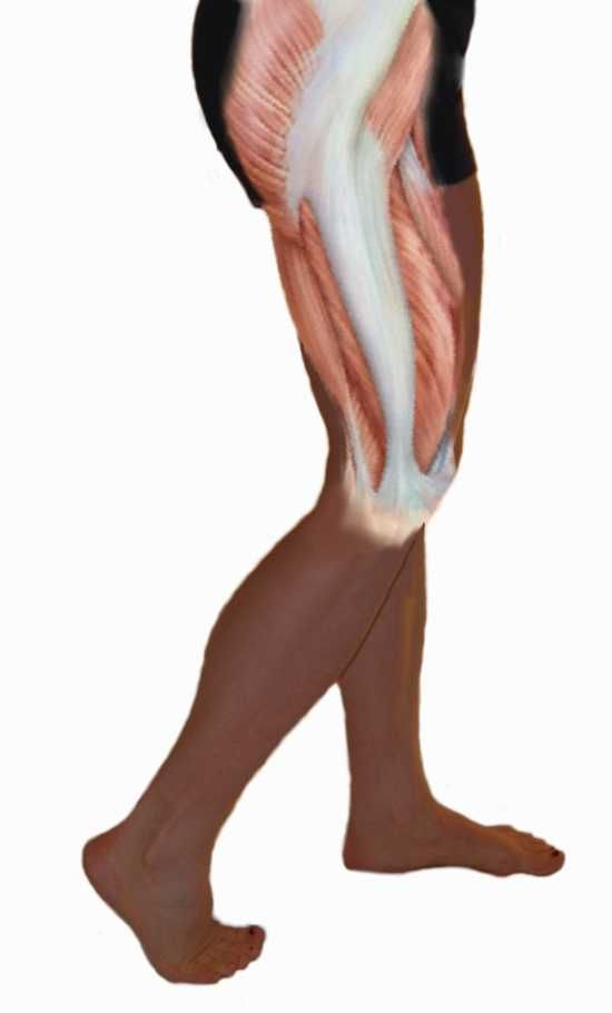 Iliotibial Band Syndrome - Treating Bursitis Of The Hip ...
