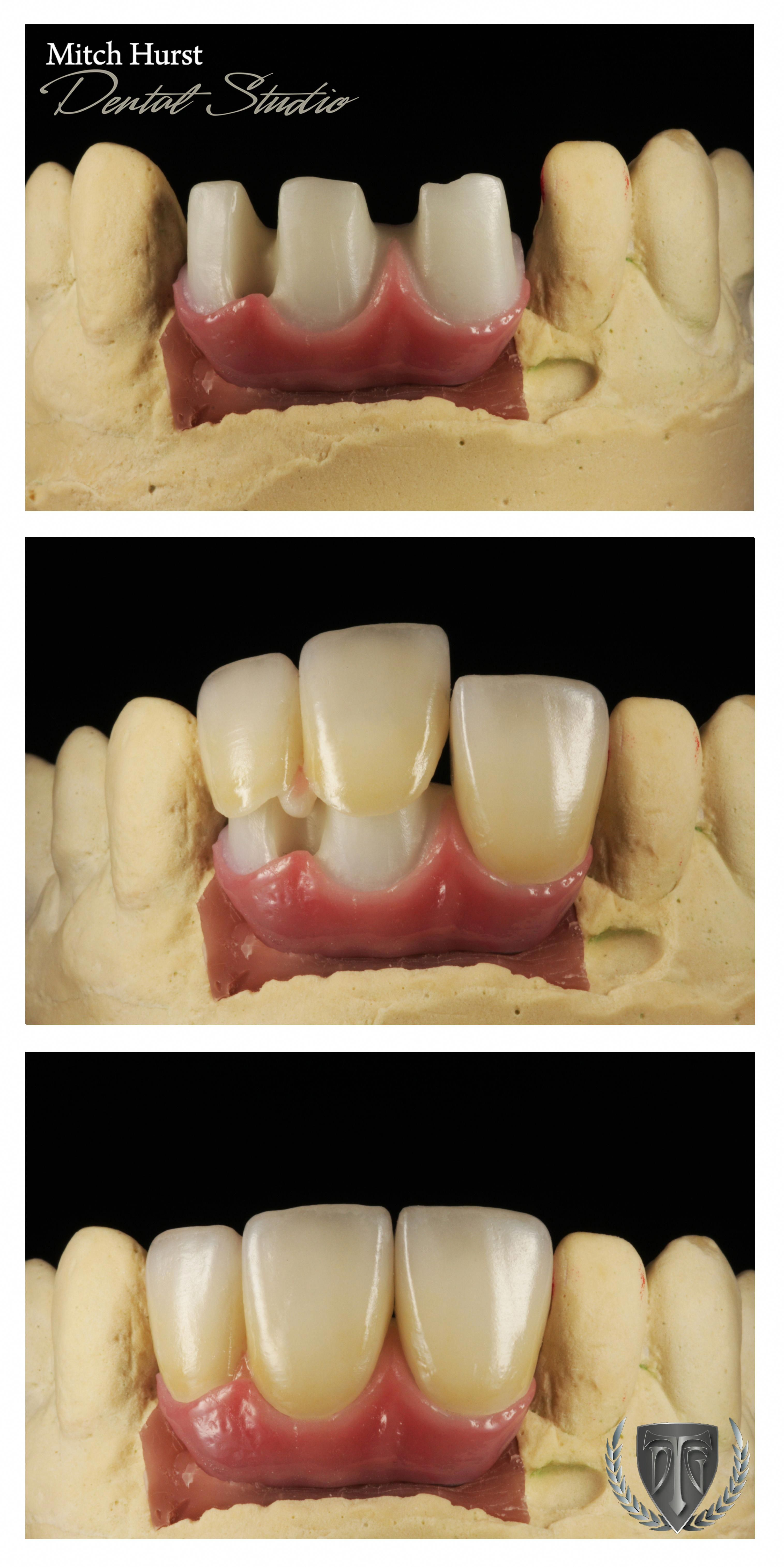 Happy dental crowns before and after watches