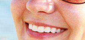 weißere zähne bekommen