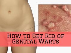 Can You Get Rid Of Genital Warts Naturally
