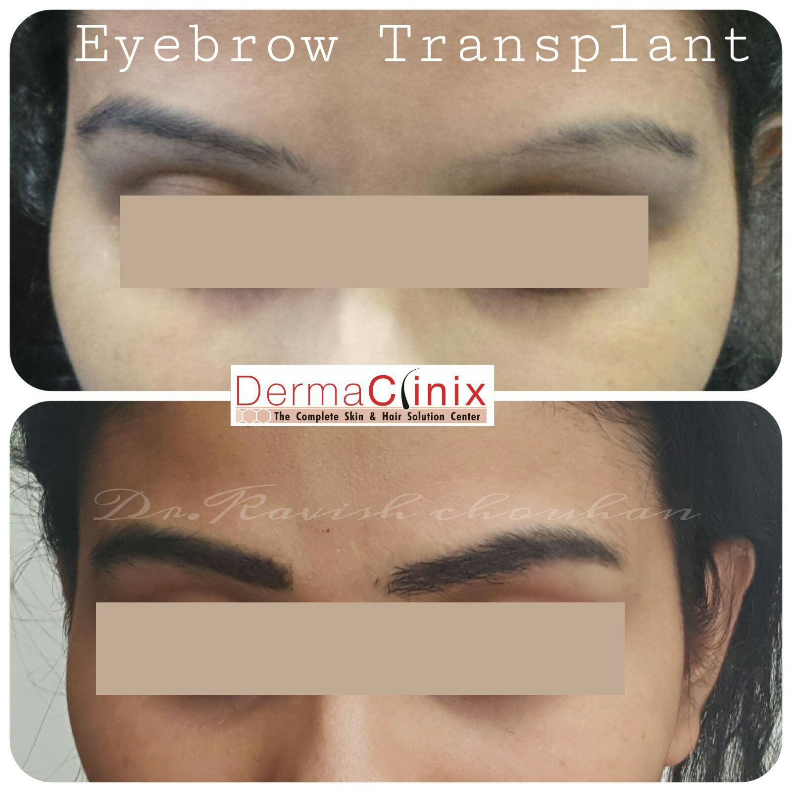 Eyebrow Transplant Result By Renowned Dr Kavish Chauhan Md Aiims