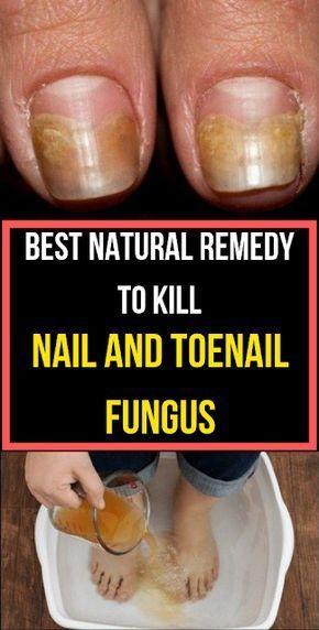Best Natural Remedy To Kill Nail And Toenail Fungus Best Natural Remedy To Kill Nail And Toenail Fungus