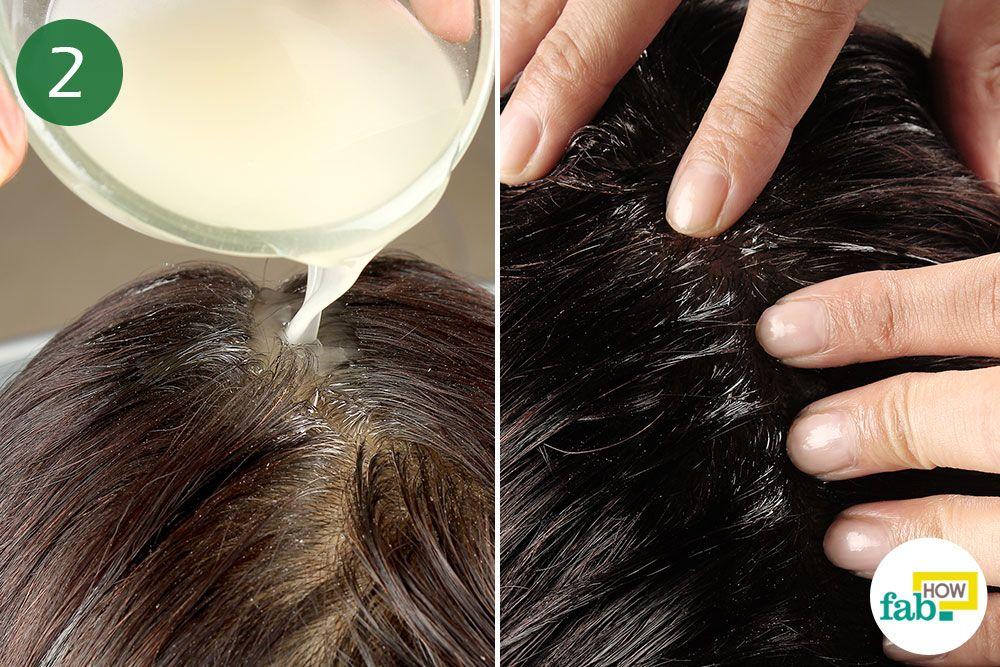 892e5b71ab55dcac2c6ba8558133521b - How To Get Rid Of Head Lice With Baby Oil