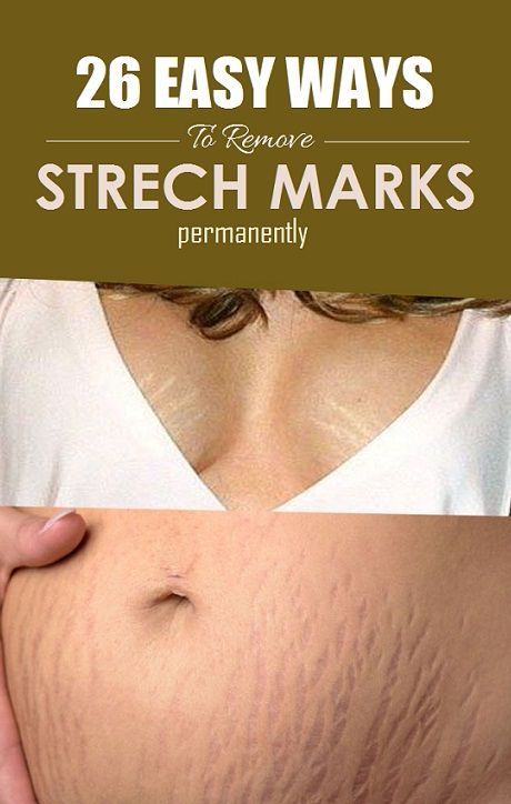 How To Get Rid Of Stretch Marks Really Fast