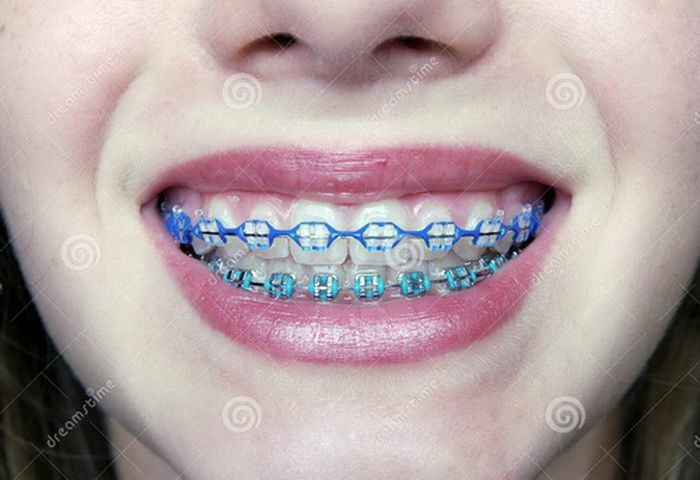 Pictures Of Braces Colors Braces Dental Braces Teeth Braces Braces Colors