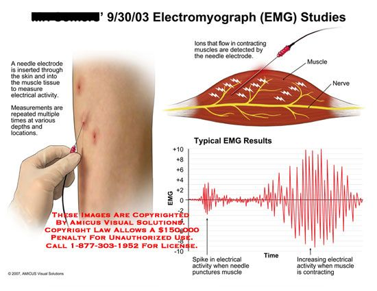 Emg Muscle Diagrams - Schematics Wiring Diagrams •