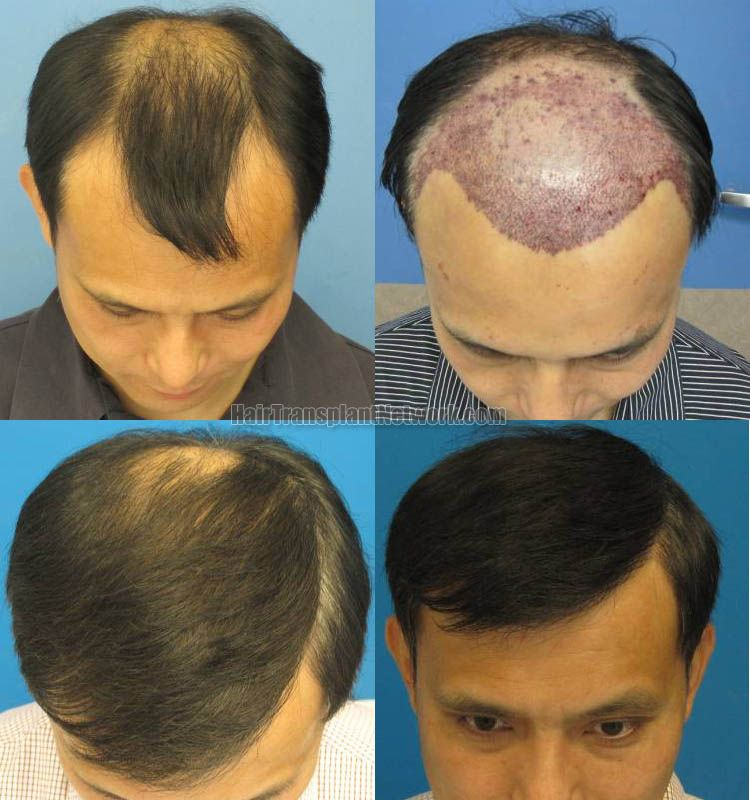 A hair surgery is not a very simple procedure. It is a systematic process  in which hair …   Male pattern baldness treatment, Male pattern baldness,  Hair loss clinic
