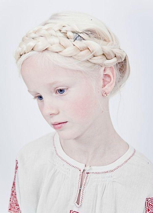 albino portraits