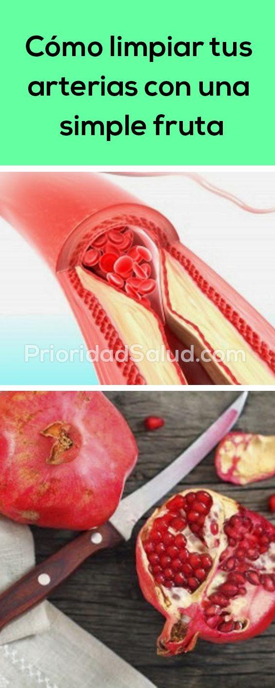 ¿Sientes los sintomas de arterias tapadas? Descubre cómo ...