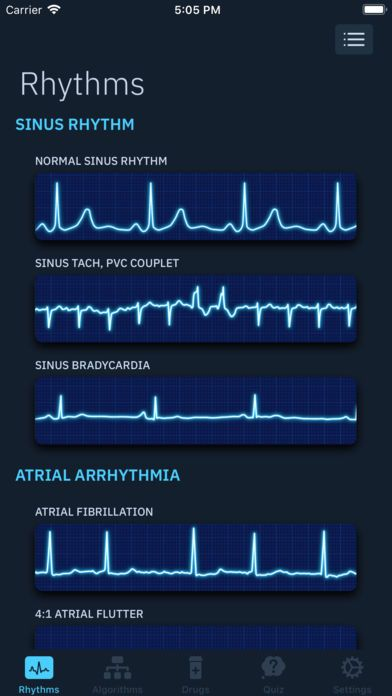 ACLS Rhythms and Quiz Normal sinus rhythm, Acls