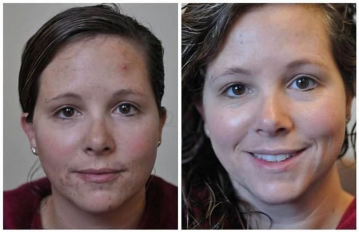 Break the acne cycle and eliminate the evidence of old acne marks.