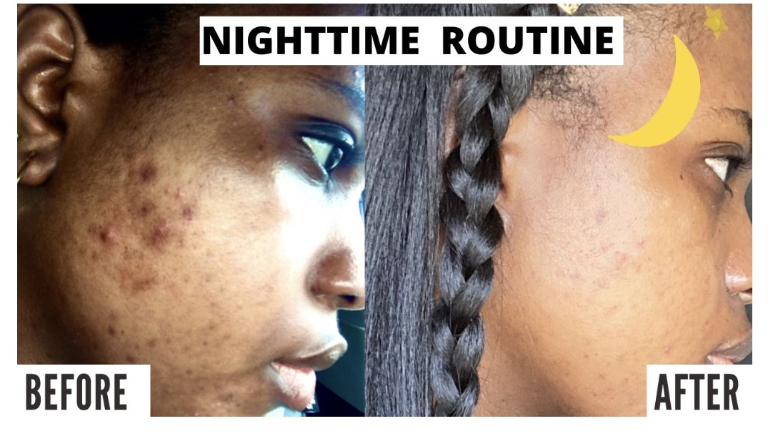 Pin on Getting Rid of Acne Scars & Dark Spots