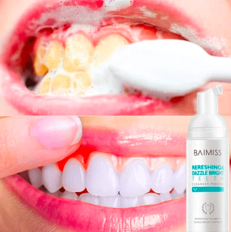 894ca8c3df288c59bdcd0624a5cb22b2 - How To Get Rid Of White Stain On Teeth