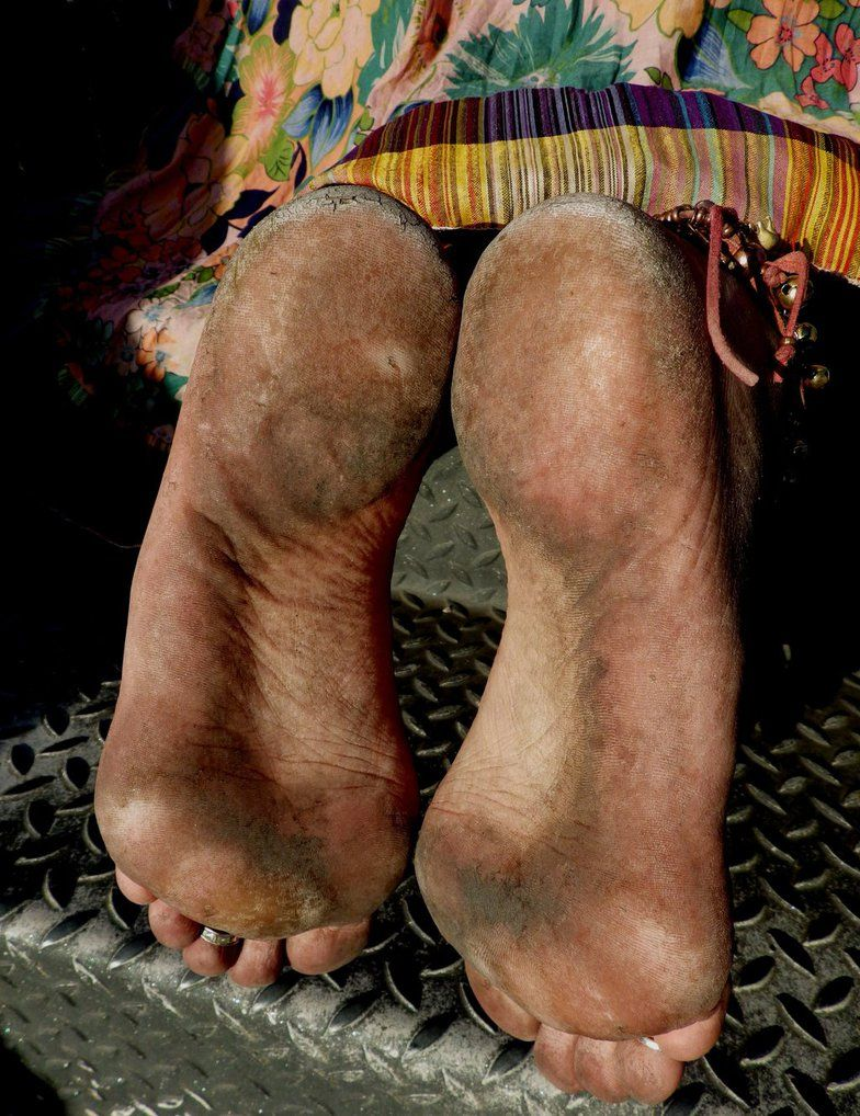 цыгане босиком с грязными ногами фото чем