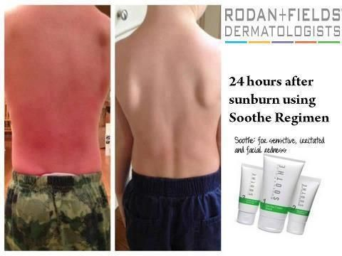 Take care of sunburns in 24 hours!!!