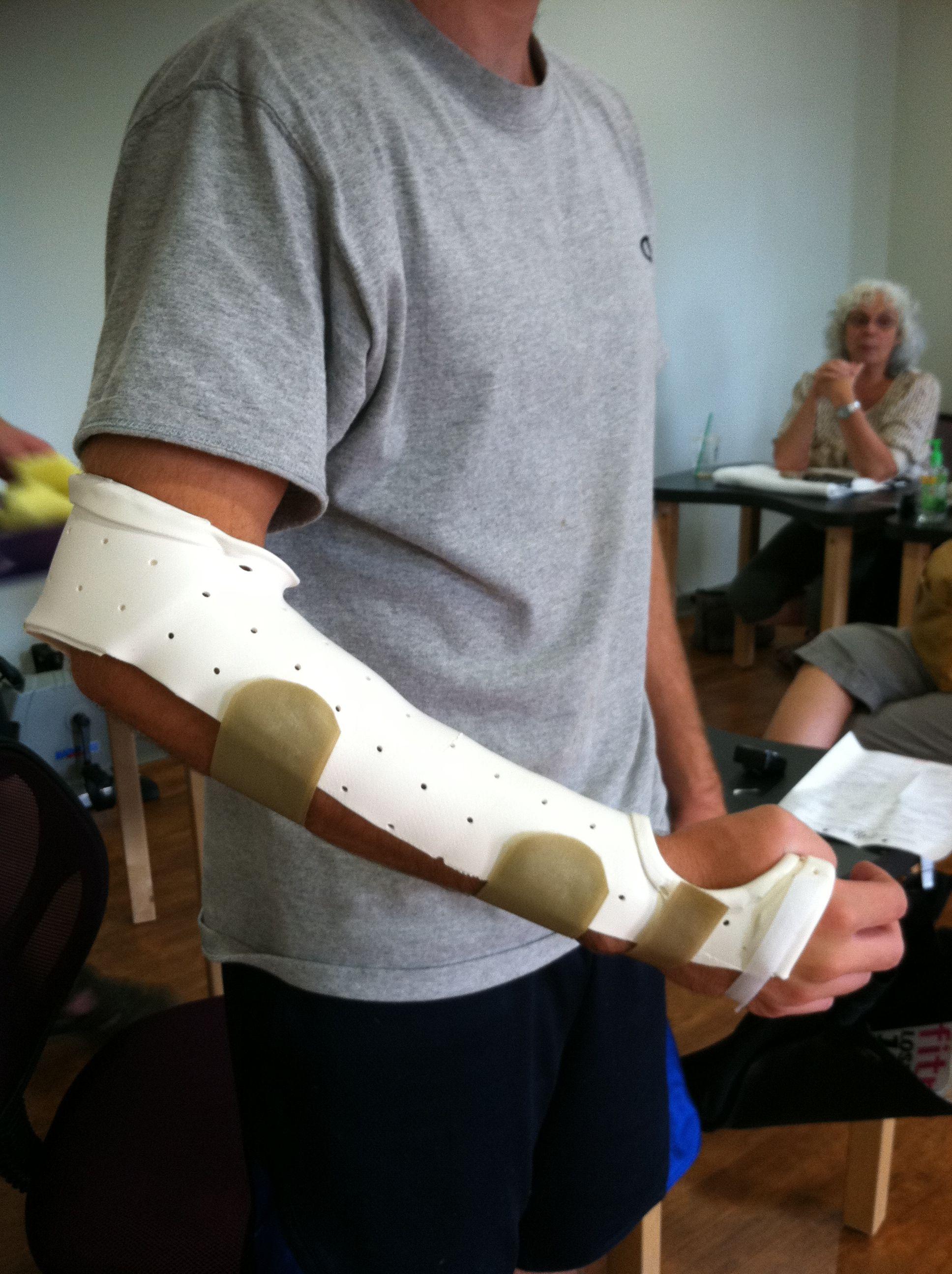 Munster Splint Prevents Forearm Rotation Often Used For