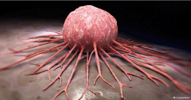 MEDICAL BREAKTHROUGH ANY TYPE OF CANCER CAN BE CURED IN JUST 2-6 WEEKS
