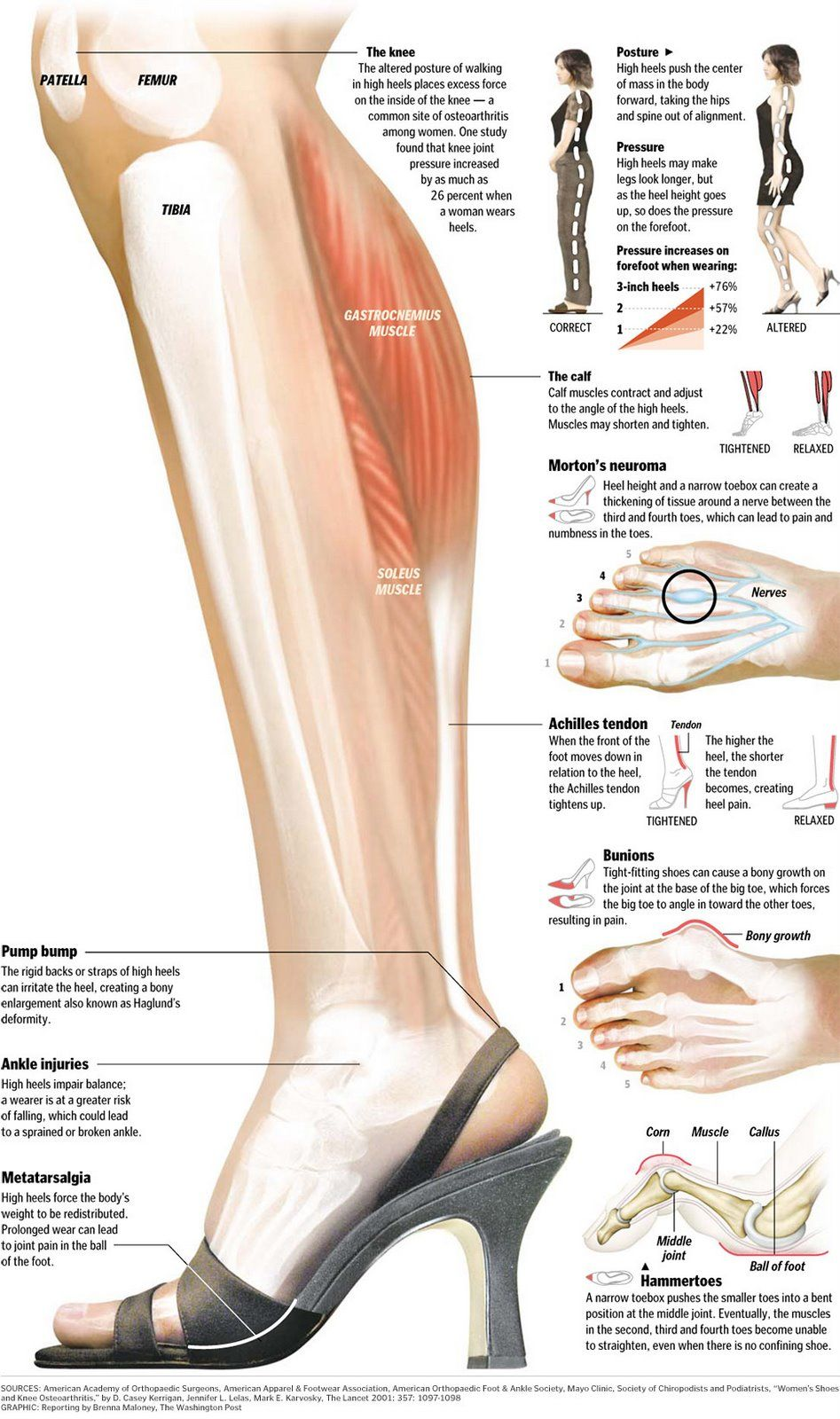 The Dangers of Wearing High Heeled Shoes | Pinterest | Foot pain ...
