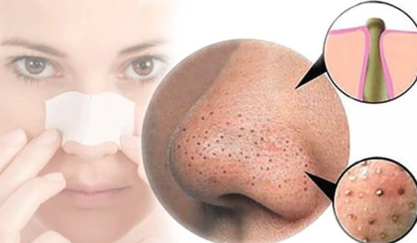 How to Prevent Blackheads : Simple Steps to Minimize Blackheads