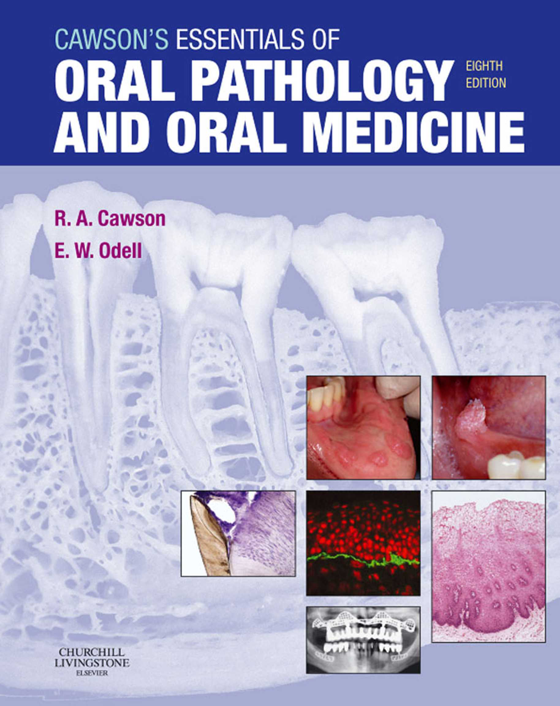 Cawson\'s Essentials of Oral Pathology and Oral Medicine 8th Edition ...