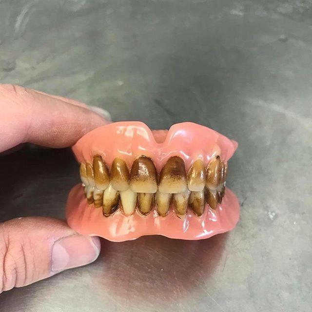 смешные картинки для зубных техников обжаривать сухой