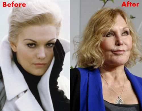 Image result for kim novak before and after