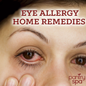 Eye Allergies Natural Remedies For Itchy Red Watery Eyes Natural Remedies For Allergies Eye Allergies Allergy Remedies