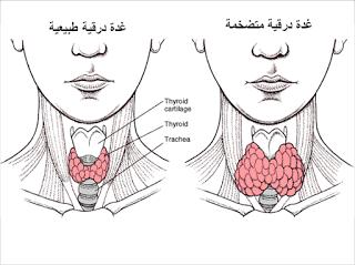 العلاج بالنباتات علاج تضخم الغدة الدرقية بالطب البديل Thyroid Thyroid Problems Underactive Thyroid