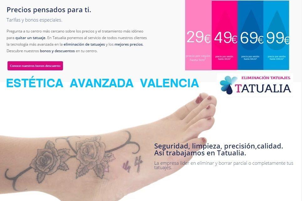 Pin En Eliminar Tatuajes Valencia
