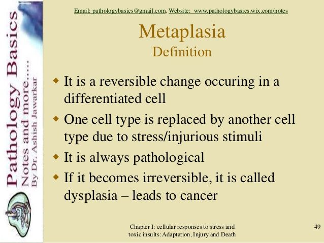 Metaplasia Definition Http Medical Dictionary Thefreedictionary Com Metaplasia Paramedic Study Cancer Killers Stress