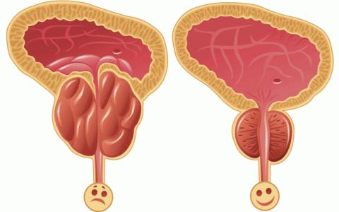 come combattere la prostatite dieta