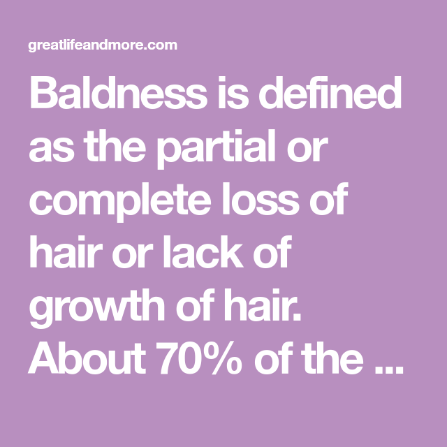 Baldness Is Defined As The Partial Or Complete Loss Of Hair Or