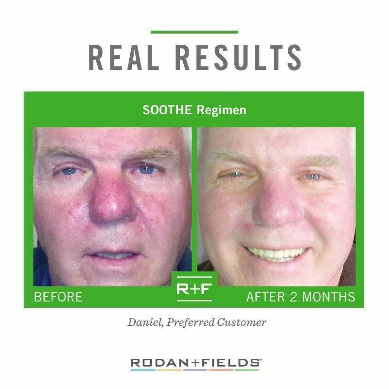 Sensitive Skin Rosacea Eczema It Can Happen To Men Women And