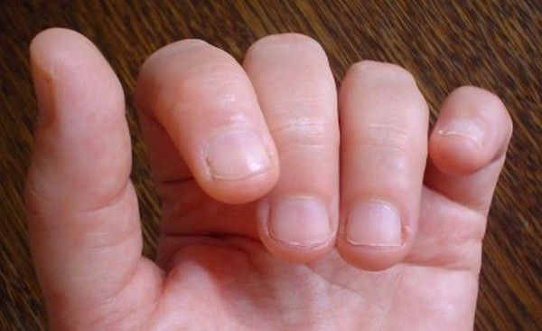 How Do I Stop Biting My Nails Tips To Stop Biting Nails