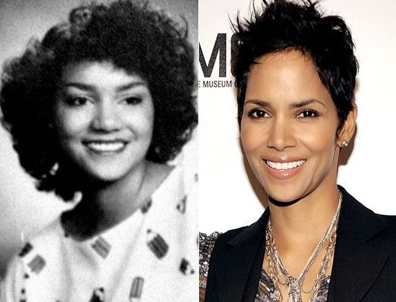 10 Celebrities Before And After Cosmetic Surgery | Celebs ...