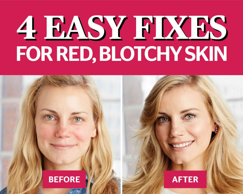 4 Easy Hacks To Fix Your Red Blotchy Skin Blotchy Skin Red Blotchy Skin Skin Solutions
