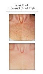 IPL! Perfect solution for anyone bothered by discoloration ...