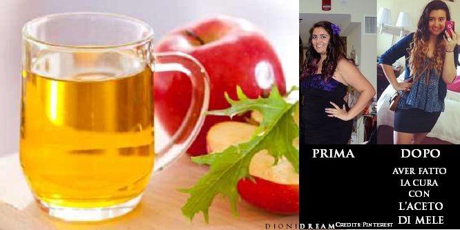 bicarbonato di sodio per perdere peso con aceto di mele