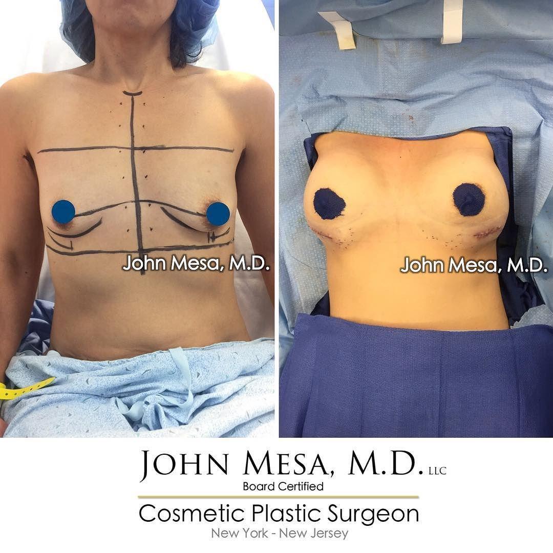 In breast nj surgeons