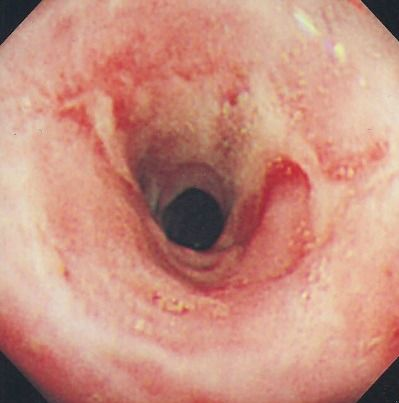 Benign Peptic Esophageal Sticture Www Refluxy Com