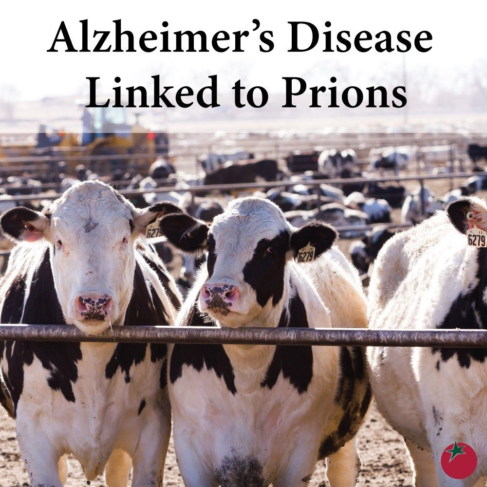 Study Claims Alzheimer's Disease Is A Double-Prion