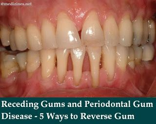 Receding Gums And Periodontal Gum Disease 5 Ways To